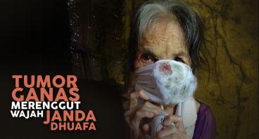 Tumor yang merenggut wajah nenek Hamidah
