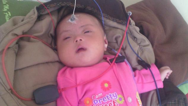 Bantu Nafisa Sembuh dari Rubella dan Down Syndrome