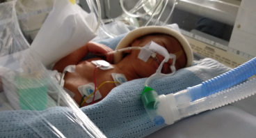 Bantu Bayi Fathir dalam Perawatan NICU