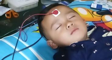 Bantu hadif oprasi cochlear implant