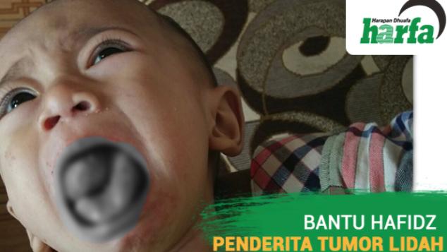 Kado Lebaran untuk Hafidz Penderita Tumor Lidah