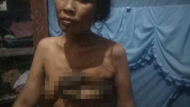 Bantu ibunda uzlifa Mela kanker payudara