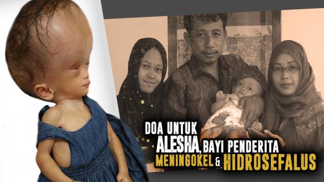 Bantu Alesha Menang Lawan Hidrosefalus