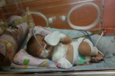 Bantu bayi Banafsha bertahan melawan Asfiksia