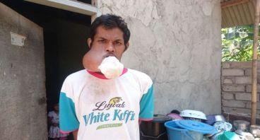 Bantu Pak Amin Lawan Tumor di Mulutnya