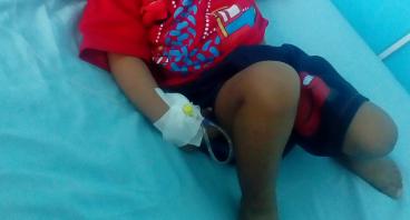 Bantu anak Abror melawan Kanker Retinoblastoma