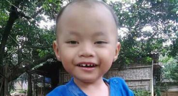 Bantu Dedek Ardith Melawan Rubella Syndrome