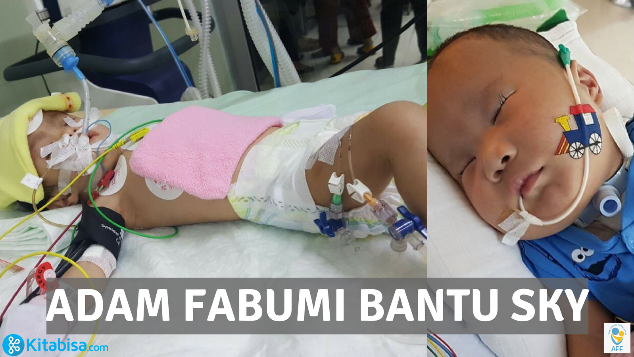 "Adam Fabumi Bantu Sky ""Pejuang Trisomy 18"""