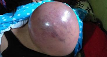 Bantu Aas mengangkat Tumor di punggungnya