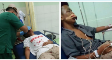 Bantu Ilham menjalankan operasi