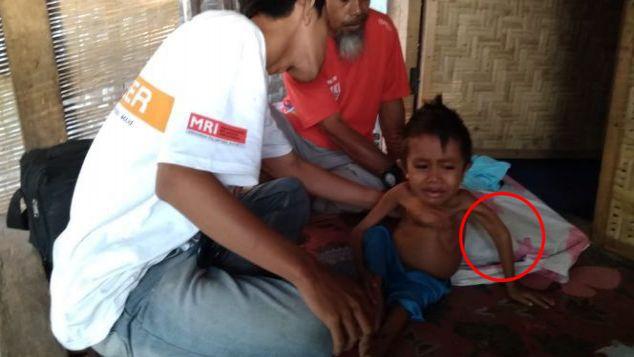 Hafidz (7 tahun), Korban Gempa Lombok Berat 6 kg