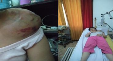 Bantu Birgit Sembuh dari Tumor di Pundaknya