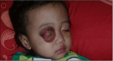 Bantu adik Julia sembuh dari penyakit matanya