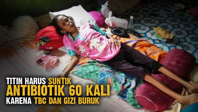 Perjuangan Titin Sembuh dari TBC dan Gizi Buruk