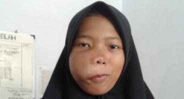 Operasi Tumor untuk Putri