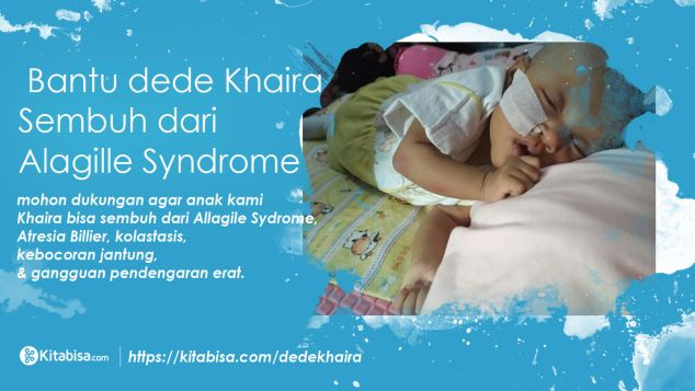 Bantu dede Khaira Sembuh dari Alagille Syndrome