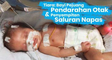 Bantu Tiara Melawan Pendarahan Otak Bawaan Lahir