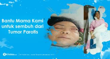 Bantu Mama Sitti Sembuh dari Tumor Parotis