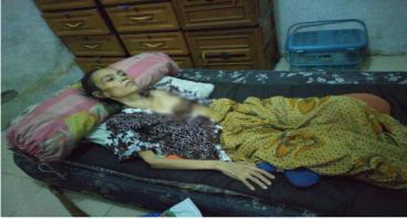 Bantu Dina Herlina Sembuh dari Kanker Payudara