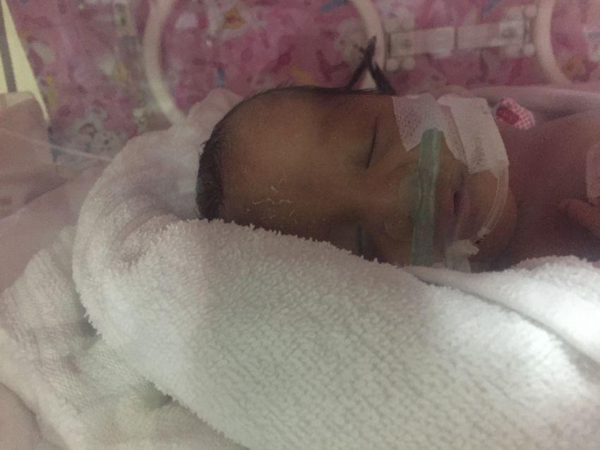 Kenar usia 23 hari, setelah settingan ventilator diturunkan ke SIMV