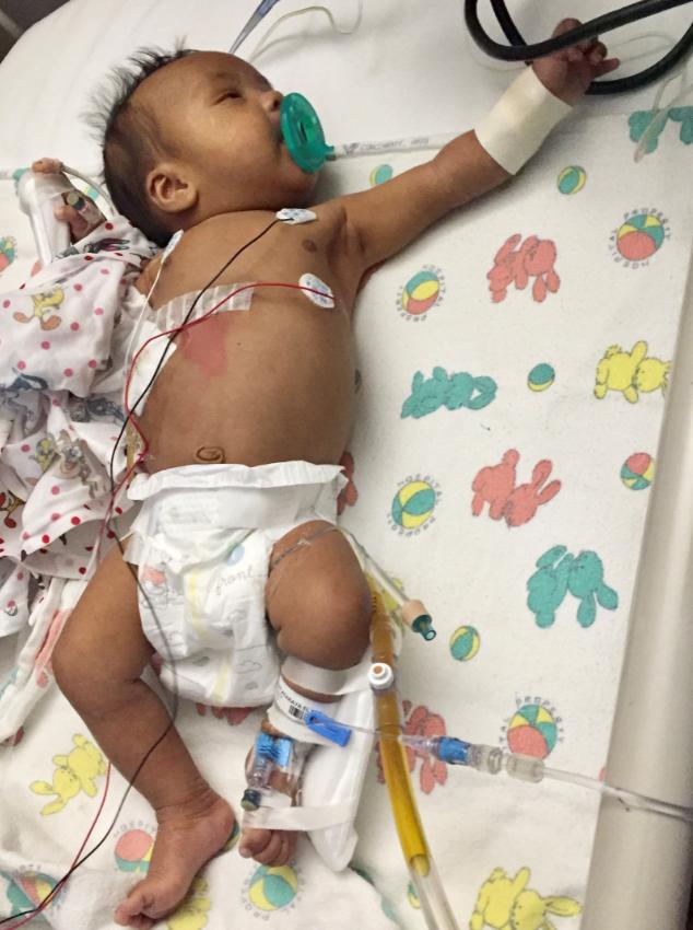 Raya pasca operasi kasai, usia 52 hari